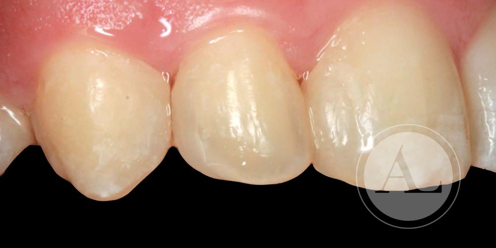 microestética dental Córdoba
