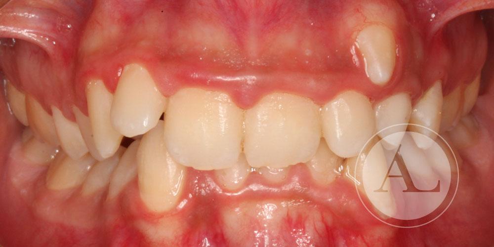 Fotografía intraoral caso de ortodoncia Antonio Lucena