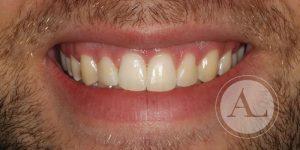 Ortodoncia en Antonio Lucena