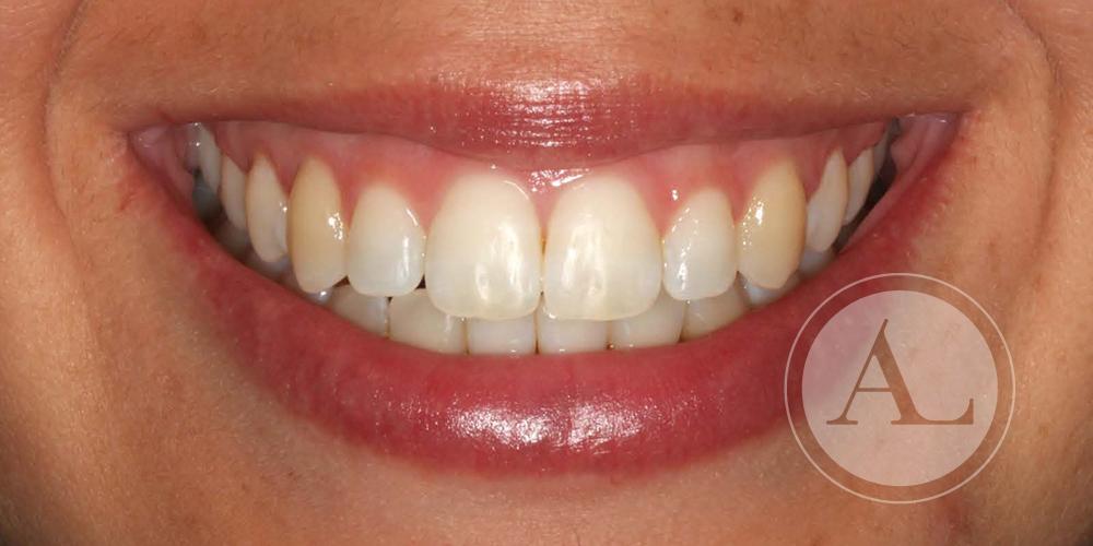 Ortodoncia en paciente adulta Clínica Antonio Lucena