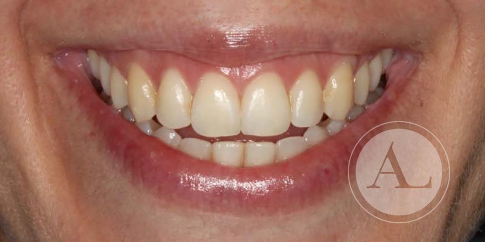 Estética dental clínica dental Antonio Lucena