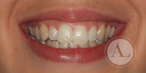Ortodoncia en adultos Clínica dental Antonio Lucena