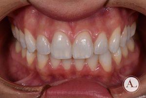 Blanqueamiento dental intraoral después