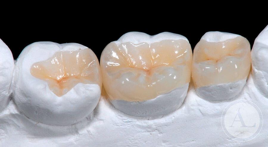 odontologia-conservadora-incrustaciones2