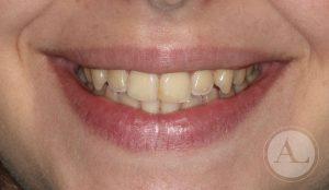 estetica-dental-blanqueamiento1