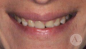 estetica-dental-carillas3