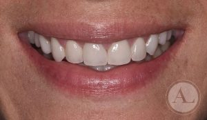 estetica-dental-carillas4