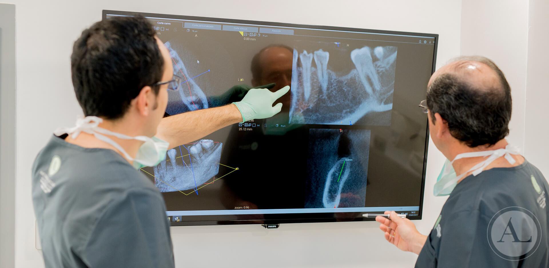 implantes-dentales-clinica-lucena