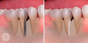 implantes-dentales-straumann-2