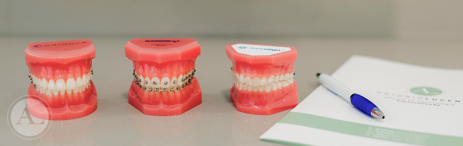 ortodoncia-tipos