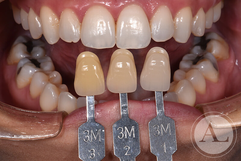clinica-Cordoba-blanqueamiento-dental-despues