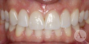 clinica-dental-Cordoba-carillas-porcenala-4