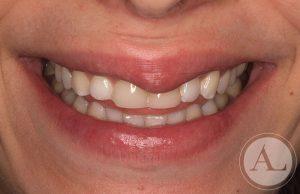 clinica-dental-Cordoba-carillas-porcenala-antes
