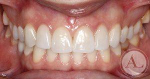 clinica-dental-Cordoba-carillas-porcenala-intraoral-despues