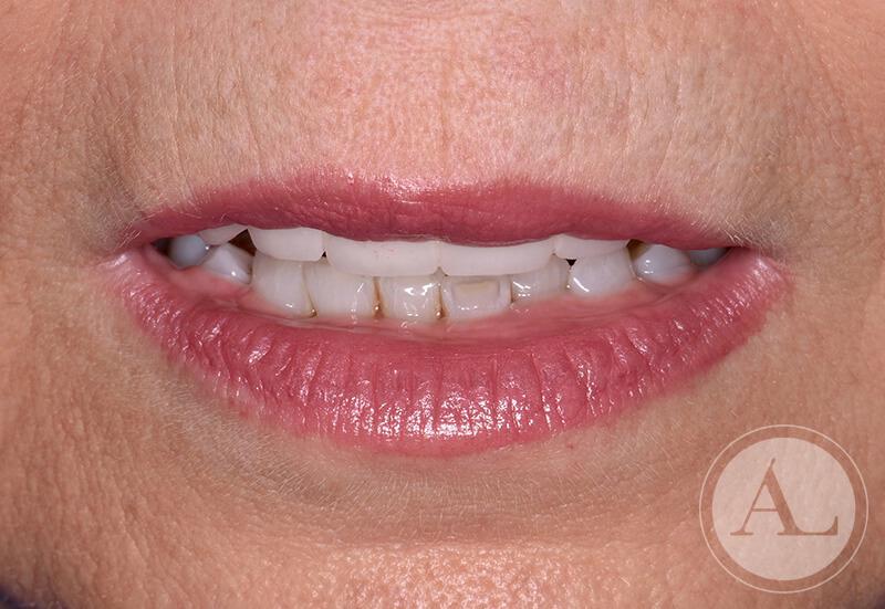 clinica-dental-Cordoba-coronas+blanqueamiento-despues