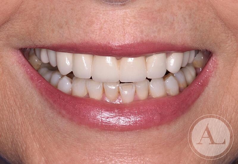 clinica-dental-Cordoba-coronas+blanqueamiento-sonrisa-despues