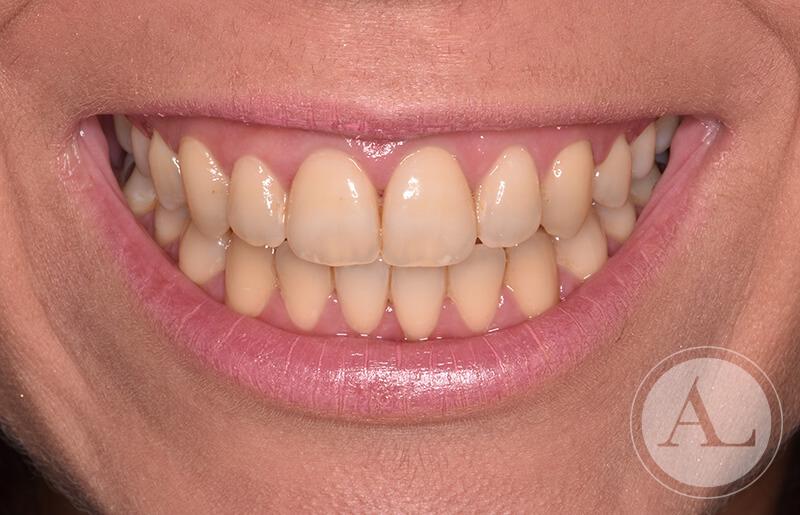 dentista-Cordoba-blanqueamiento-dental-antes
