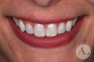 dentista-Cordoba-blanqueamiento-dental-despues