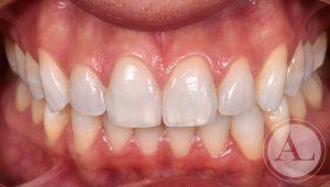 dentista-Cordoba-blanqueamiento-dental-intraoral-despues