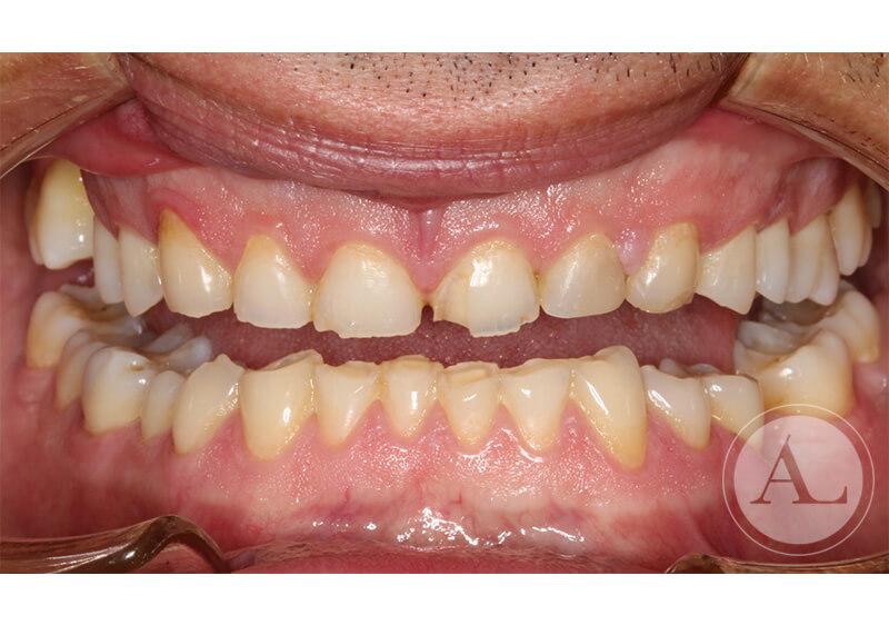 coronas-de-ceramica+implantes-intraoral-antes
