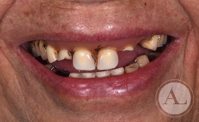 dentista-Cordoba-protesis-completa-antes