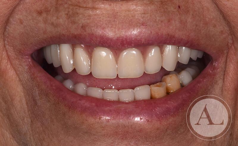 dentista-Cordoba-protesis-completa-despues