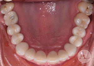 coronas-de-ceramica+implantes-intraoral-sup-despues